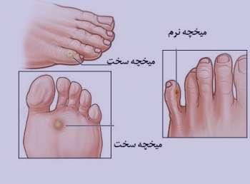 میخک پا , میخچه پا , درمان خانگی میخک پا , درمان خانگی میخچه پا