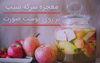فواید سرکه سیب برای پوست , خواص سرکه سیب برای پوست , فواید سرکه سیب برای پوست صورت , خواص سرکه برای پوست