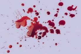 عوارض خونریزی بواسیر