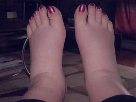 ورم پای راست ، ورم پای راست در بارداری ، ورم پای راست ، ورم پای راست در دوران بارداری ، ورم قوزک پای راست