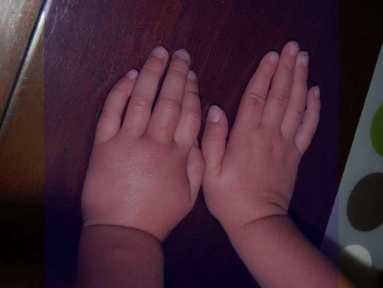 درمان ورم پا و دست ، درمان ورم دست و پا در بارداری ، درمان ورم دست و پا در دوران بارداری ، درمان ورم دست و پا بعد از زایمان