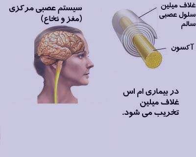 Image result for بیماری ام اس چیست