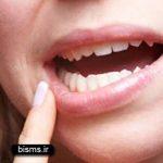 """علت و راه درمان آفت دهان+درمان گیاهی """"آفت دهان"""""""