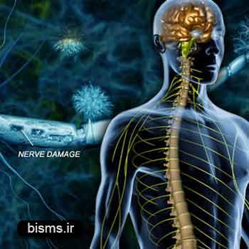 ام اس , بیماری ام اس ، درمان ام اس , علائم ام اس , بیماری ام اس چیست