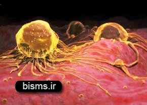 سرطان،راههای درمان