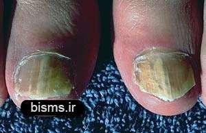 درمان های خانگی برای قارچ ناخن