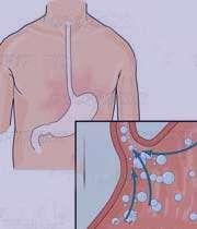 سوزش معده,علت سوزش معده,دلایل سوزش معده,بیماریهای دستگاه گوارش