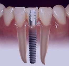 دندانپزشک, دندان درد, ایمپلنت