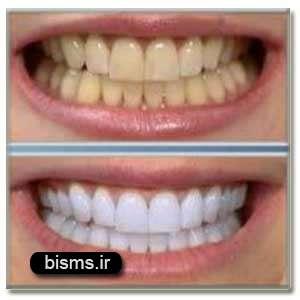 اگر دندانتان را جرم گیری نکنید