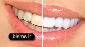 بی نیاز شدن از دندان پزشک با چای سبز