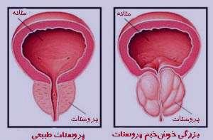 بزرگ شدن پروستات