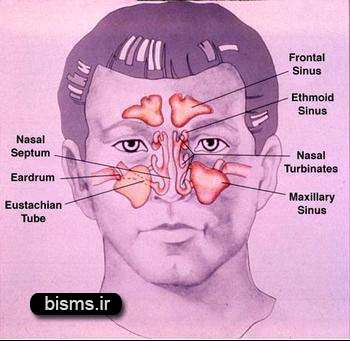 سينوزيت , علائم سینوزیت , درمان سینوزیت