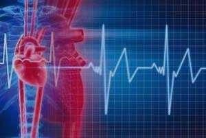 سرگیجه, آریتمی قلب, فیبریلاسیون دهلیزی