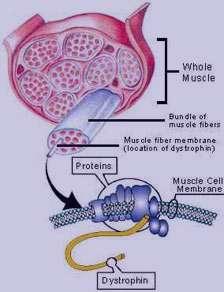 ورزش درمانی, اسکولیوز, ژن درمانی