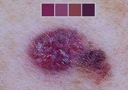 علائم و نشانه ها ی سرطان پوست+درمان سرطان پوست