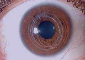 قوز قرنیه, بیماریهای چشمی, حساسیت فصلی