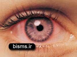 التهاب ملتحمه ( قرمزی چشم )
