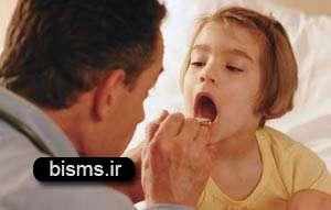 گلودرد,درمان گلو درد