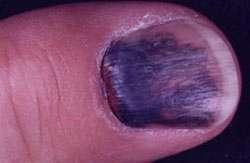 سیاه شدن ناخن,علت سیاه شدن ناخن,علت تغیر رنگ ناخن