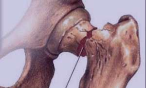 پوکی استخوان,نشانه های پوکی استخوان