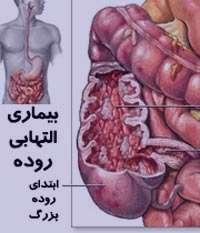 التهاب روده بزرگ, کولیت زخمی