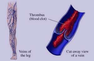 سرطان, لخته خون, قرص های ضدبارداری, تورم پاها