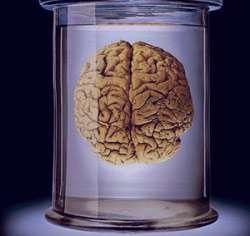 بیماری آلزایمر, درمان آلزایمر