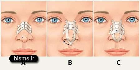 عوارض جراحی زیبایی بینی , عوارض جراحی بینی , عوارض جراحی بینی استخوانی , عوارض جراحی بینی گوشتی