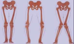 پای پرانتزی ،پای پرانتزی خفیف،پای پرانتزی در نوزادان،پای پرانتزی+درمان،پای پرانتزی حرکات اصلاحی