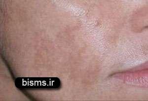 رابطه پوست با کبد