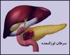 سرطان لوزالمعده , سرطان لوزالمعده کشنده است , علائم سرطان لوزالمعده , عوارض سرطان لوزالمعده