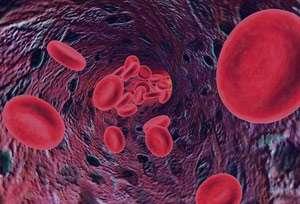 بیماریها, رژیم غذایی, کم خونی, فقرآهن, گردش خون, گلبول های قرمز