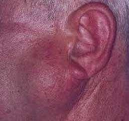علائم تومور, انواع تومور, تومور, بیماریهای پوستی