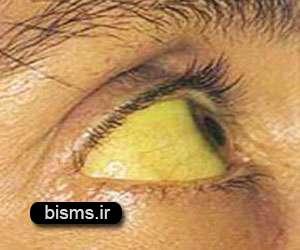 علائم بیماری هپاتیت a و b و c