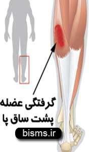 چرا عضلات می گیرند؟