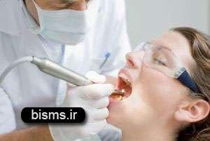 نکاتی راجع به جرم گیری دندان