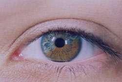 بیماری های چشم,علائم سندرم دید کامپیوتری,کور رنگی
