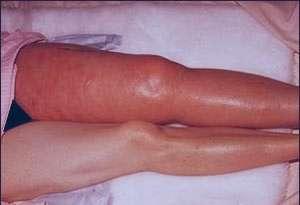 ترومبوز وریدهای عمقی, تجمع خون در پا