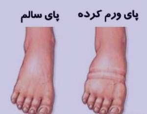 درمان ورم پا, علل ورم پا
