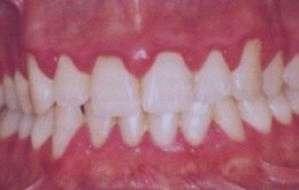 دهان و دندان, بیماری لثه, خونریزی لثه