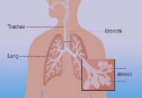 برونشكتازي, بیماری برونشکتازی,بيماري سل