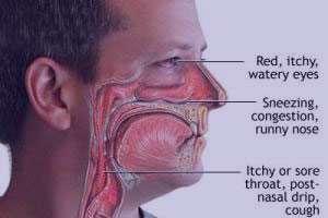 پولیپ بینی, درمان پولیپ بینی