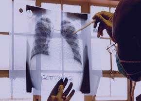 انتقال سل, بيماري مزمن, بیماری سل