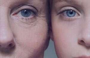 پیری زودرس,پیشگیری از پیری زودرس,عوامل موثر در پیری زودرس