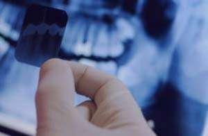 دندان,دندان عقل,دندان نهفته