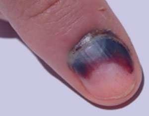 انواع آسیب ناخن, ناخن های دست