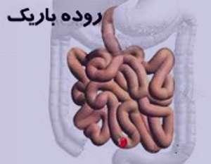 سرطان روده باریک , سرطان روده باریک ویکی پدیا , سرطان روده باریک در کودکان