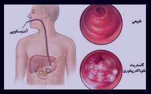 آزمایش میکروب معده , درمان میکروب معده , علایم میکروب معده درمان , میکروب معده
