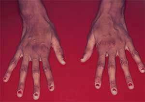 سندروم مارفان, اختلالات بینایی