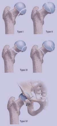 علائم و راه درمان شکستگی استخوان